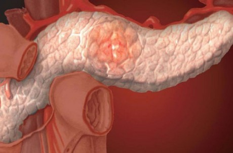 Гастроэнтерология хронический панкреатит