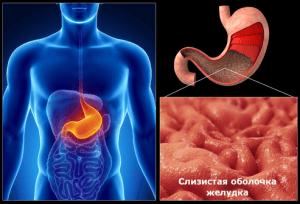 Что такое гастрит желудка.