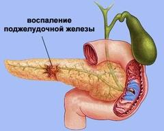 какие могут быть заболевания поджелудочной железы