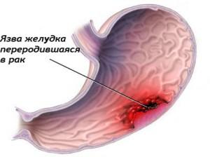 симптомы при язве