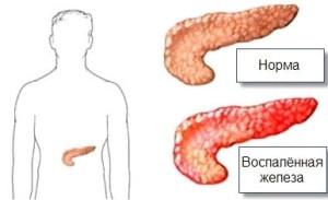 Панкреатит острый и хронический.