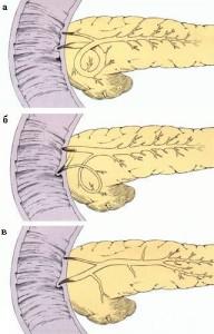 Аномалии поджелудочной железы