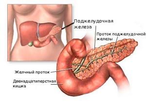 Панкреатит это воспаление в поджелудочной железе