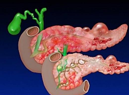 Что такое панкреонкроз.