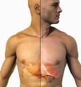 Последствия инсулиномы.