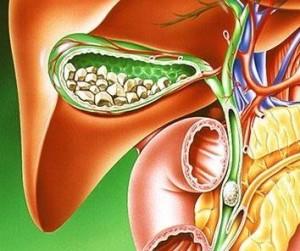 Почему возникает панкреатит у мужчин