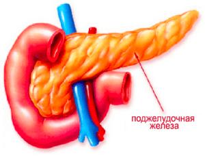 Острый панкреатит поджелудочной железы