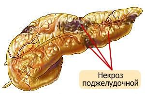 Какие могут быть осложнения острого панкреатита