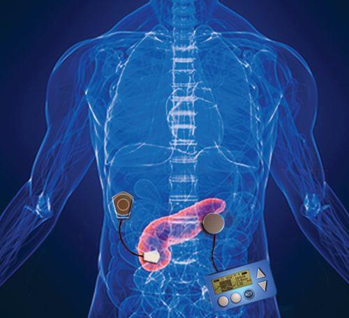 Причины изменений в поджелудочной железе